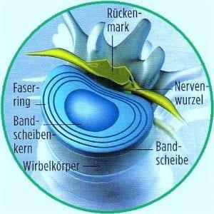 bandscheibe-querschnitt